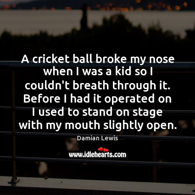 A cricket ball broke my nose when I was a kid so Image