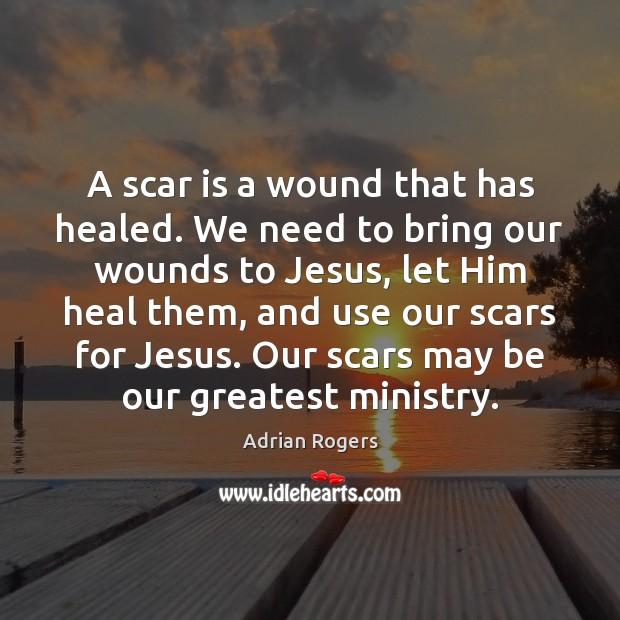 A scar is a wound that has healed. We need to bring Adrian Rogers Picture Quote