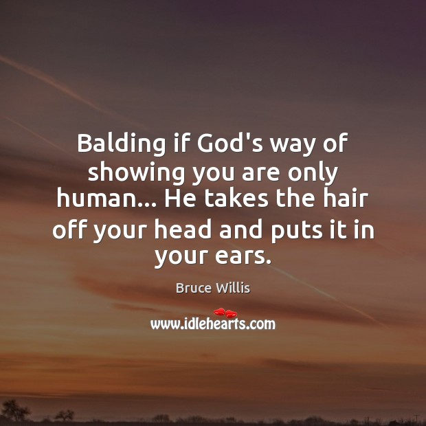 Balding if God's way of showing you are only human… He takes Image