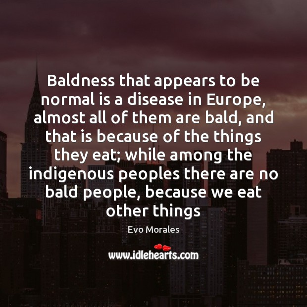 Baldness that appears to be normal is a disease in Europe, almost Image