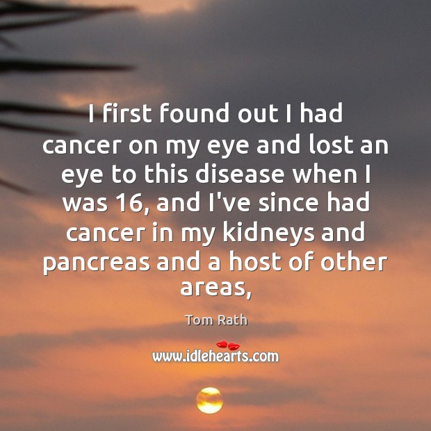 I first found out I had cancer on my eye and lost Image