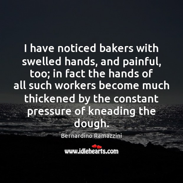Image, I have noticed bakers with swelled hands, and painful, too; in fact