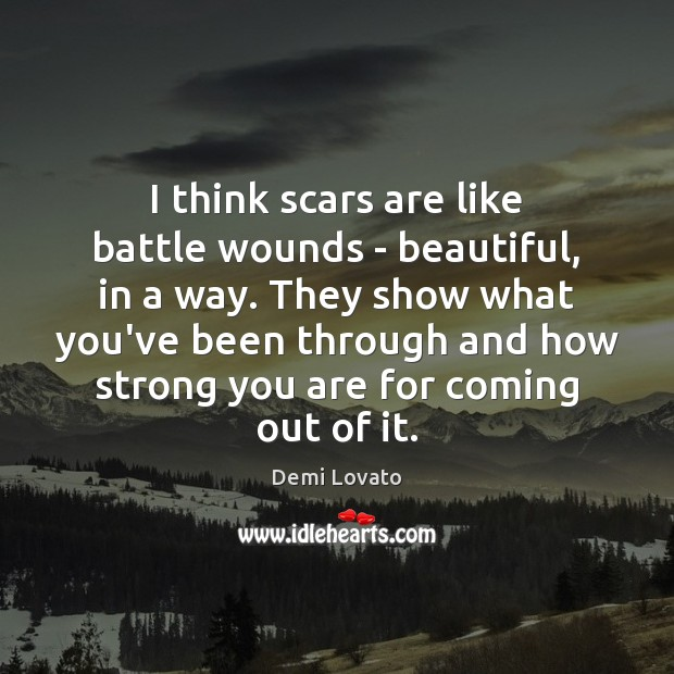 Image, I think scars are like battle wounds – beautiful, in a way.