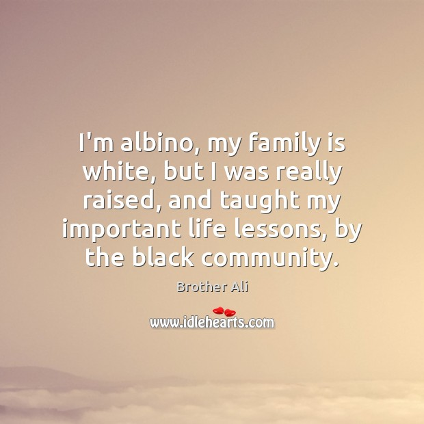 I'm albino, my family is white, but I was really raised, and Image