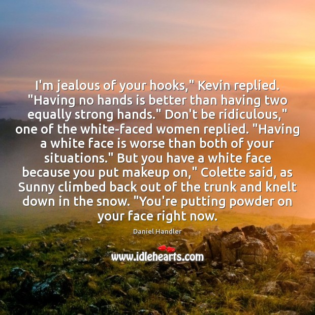 """I'm jealous of your hooks,"""" Kevin replied. """"Having no hands is better Image"""