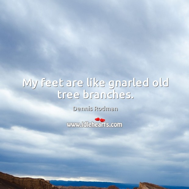 My feet are like gnarled old tree branches. Image