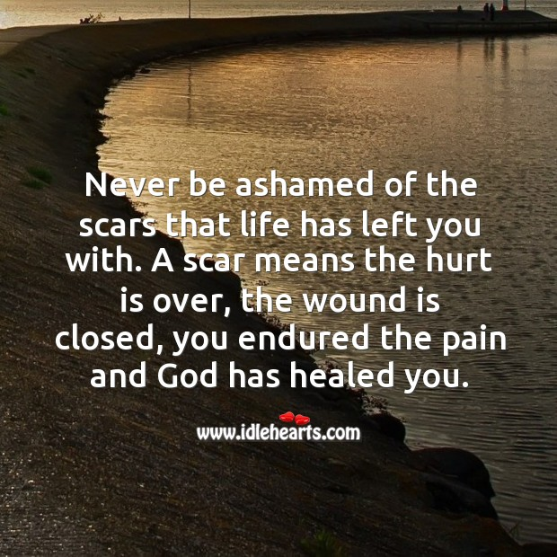 Never be ashamed of the scars that life has left you with. Image