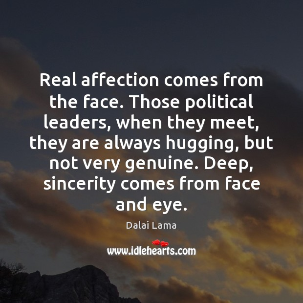 Real affection comes from the face. Those political leaders, when they meet, Image