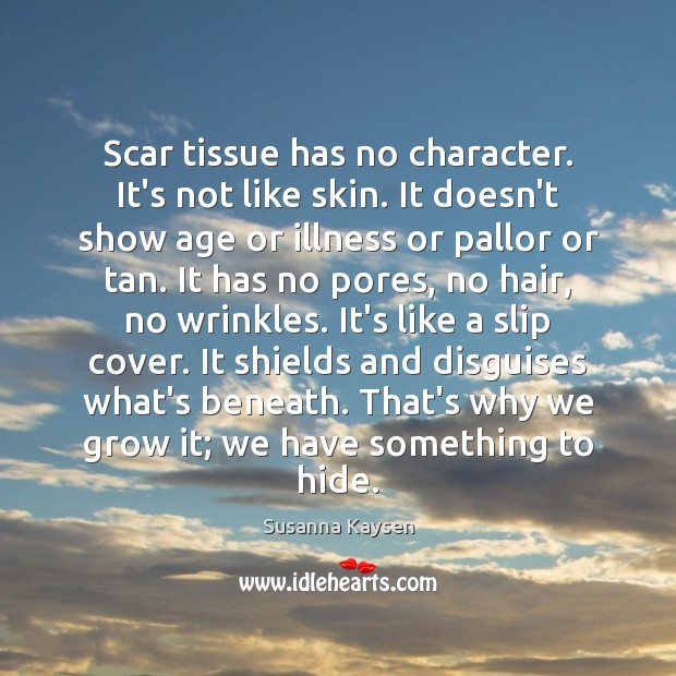 Scar tissue has no character. It's not like skin. It doesn't show Susanna Kaysen Picture Quote