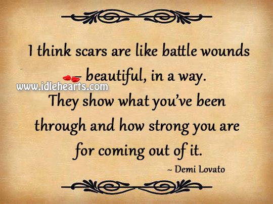 Image, Scars are like battle wounds