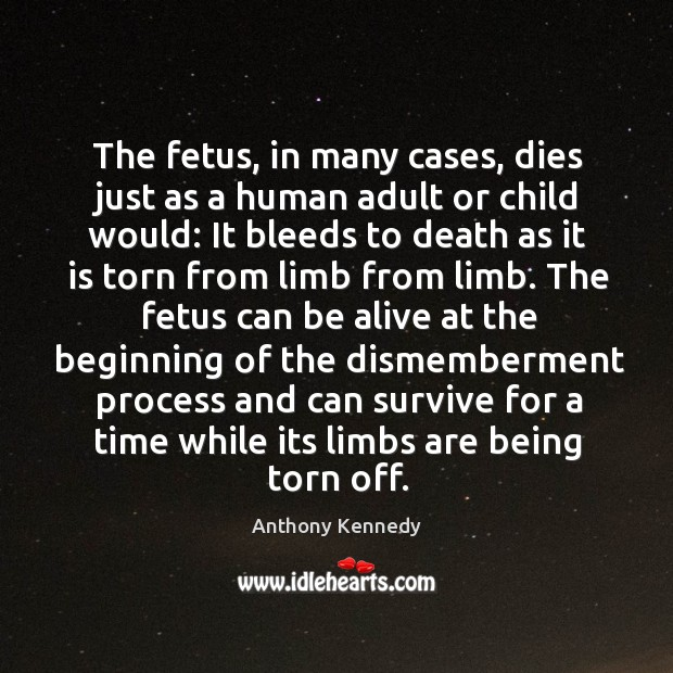 The fetus, in many cases, dies just as a human adult or Anthony Kennedy Picture Quote