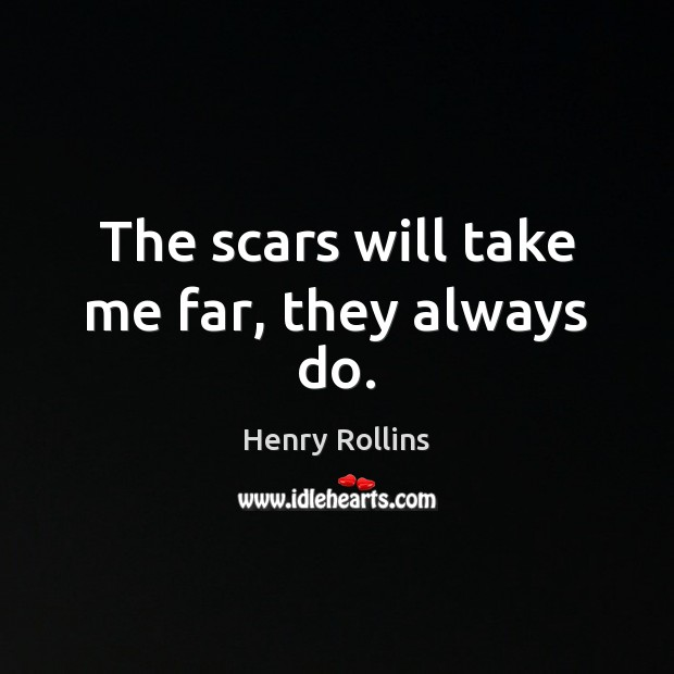 The scars will take me far, they always do. Image