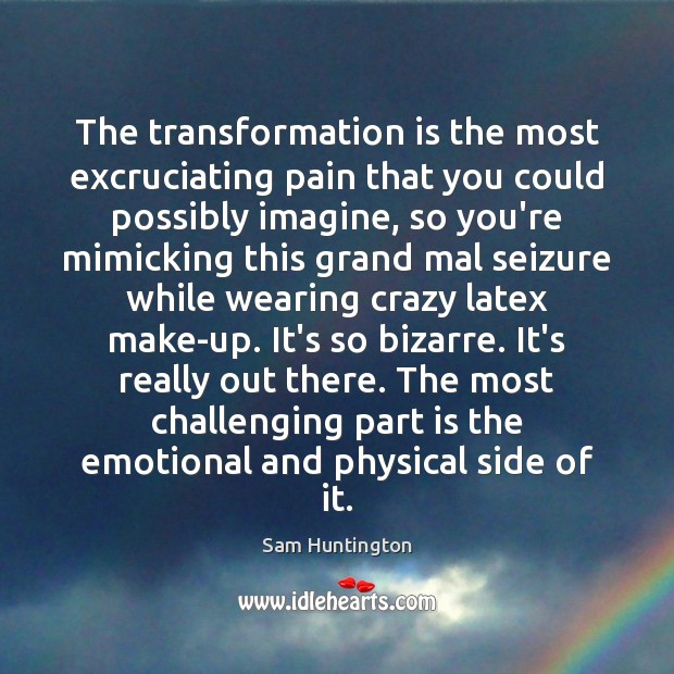 The transformation is the most excruciating pain that you could possibly imagine, Image