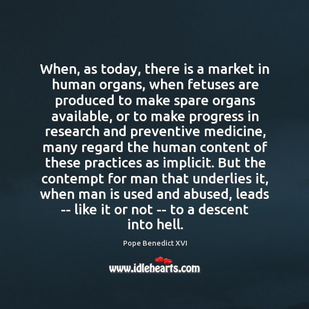 When, as today, there is a market in human organs, when fetuses Image