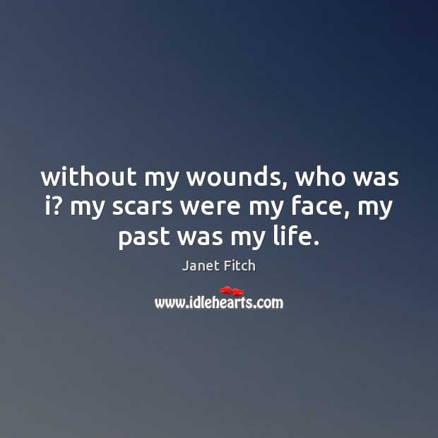 Without my wounds, who was i? my scars were my face, my past was my life. Janet Fitch Picture Quote