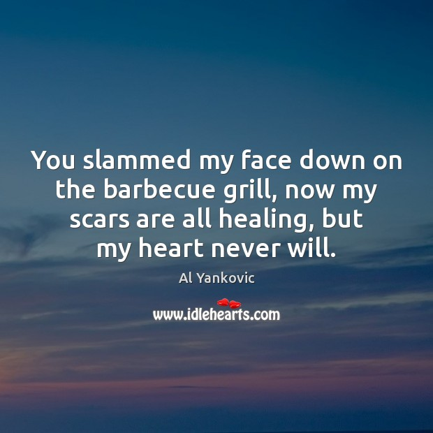 You slammed my face down on the barbecue grill, now my scars Al Yankovic Picture Quote