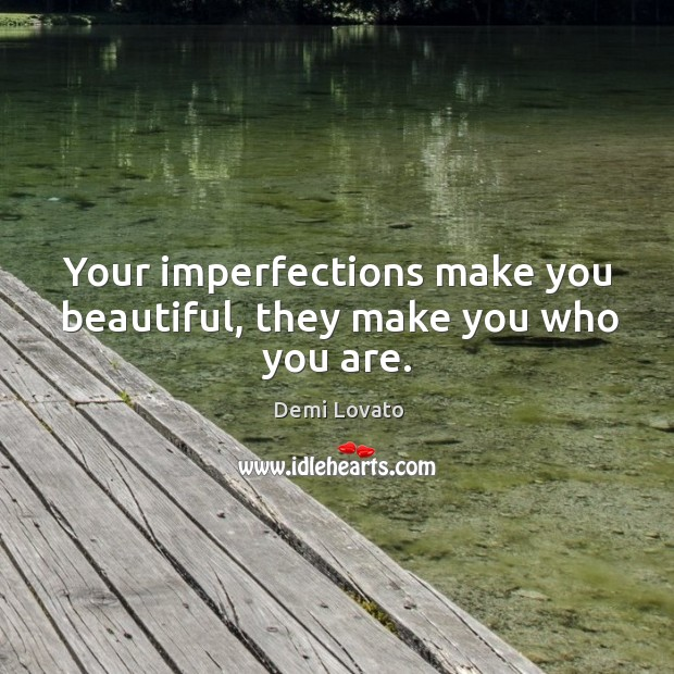 Your imperfections make you beautiful, they make you who you are. Image